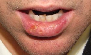 как выглядит рак губы начальная стадия