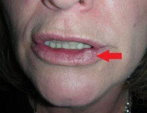 Как выявить рак губы на начальной стадии