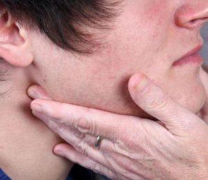 О чем говорит опухоль под подбородком