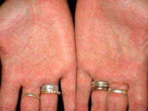 Признаки скарлатины у взрослых и методы лечения