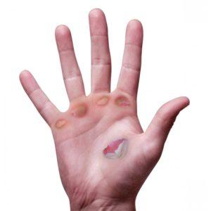 Методы борьбы с мозолями на руках