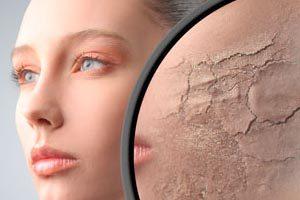 Что делать при обезвоживании кожи лица