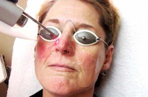 Причины и лечение красных щек у взрослых