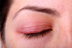 Откуда взялся дерматит под глазами и как его вылечить
