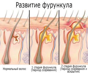 Сроки созревания и течения фурункулеза: методы ускорения выздоровления