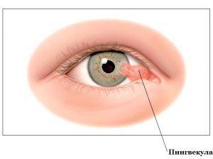 Опасен ли нарост на глазном яблоке и как его убрать