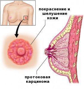 Как выявить и бороться с опухолью молочной железы Педжета