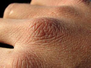 Что делать с цыпками на коже рук