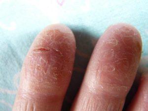 Почему у детей может лопается кожа на пальцах рук