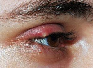 Передается ли ячмень на глазу окружающим