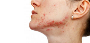 Причины и способы лечения раздражения на лице